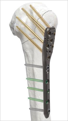 Placa de compresión húmero / porción proximal - AOS - Advanced ...