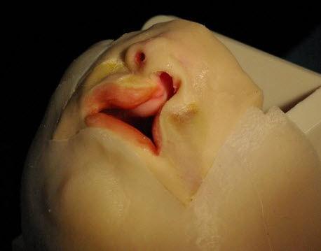 Simulador para cirugía del labio leporino / pediátrico / cabeza ...