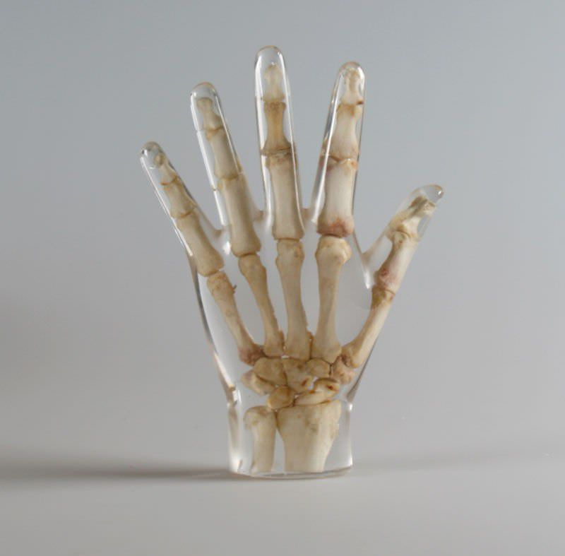 Fantoma de prueba de radiología / mano - 7210 - Erler-Zimmer ...