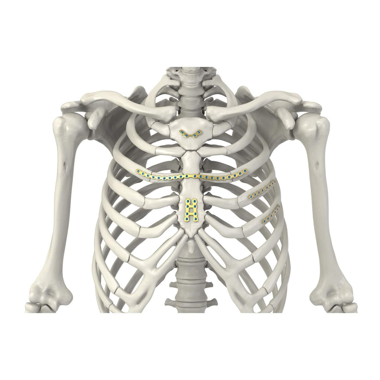 Placa de compresión huesos costales / esternón - Arix - Sternal ...