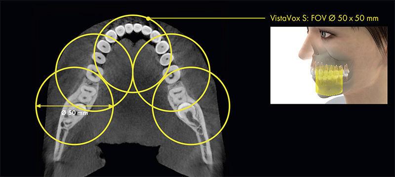 Sistema de radiografía panorámica / digital / para suelo - VistaVox ...