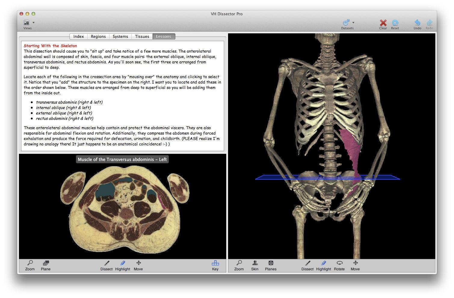 Software de formación / de anatomía - VH Dissector for Undergraduate ...