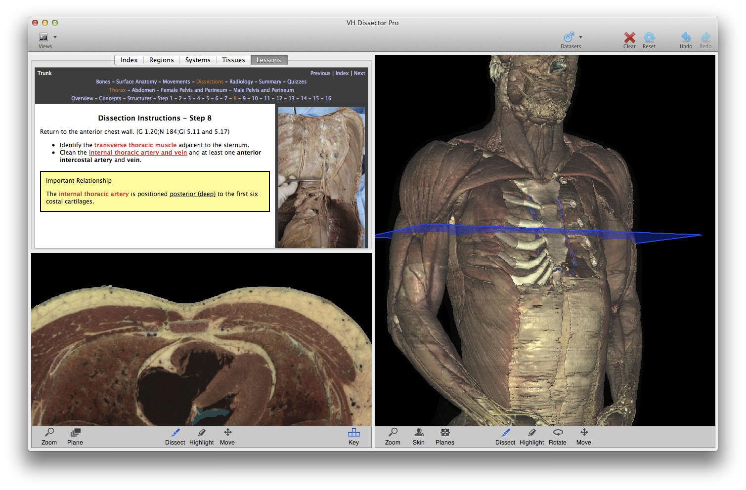 Lujo Software De La Anatomía 3d Ideas - Anatomía de Las Imágenesdel ...