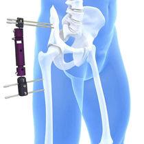 Fijador externo cadera / tubular / para adulto
