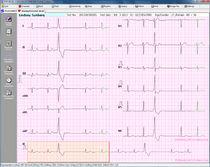 Software de gestión de datos / para electrocardiografía
