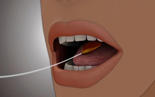 balón intragástrico no quirúrgico - Allurion Technologies