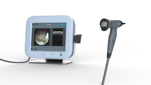 videotoscopio / con monitor de vídeo integrado / con OCT / pediátrico