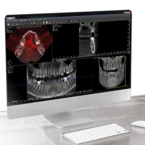 software de análisis / de visualización / de diagnóstico / de planificación