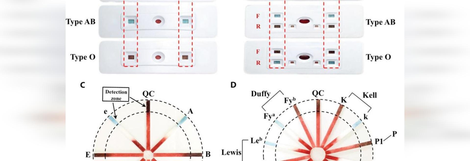 Análisis del PC desarrollado para el grupo sanguíneo confiable