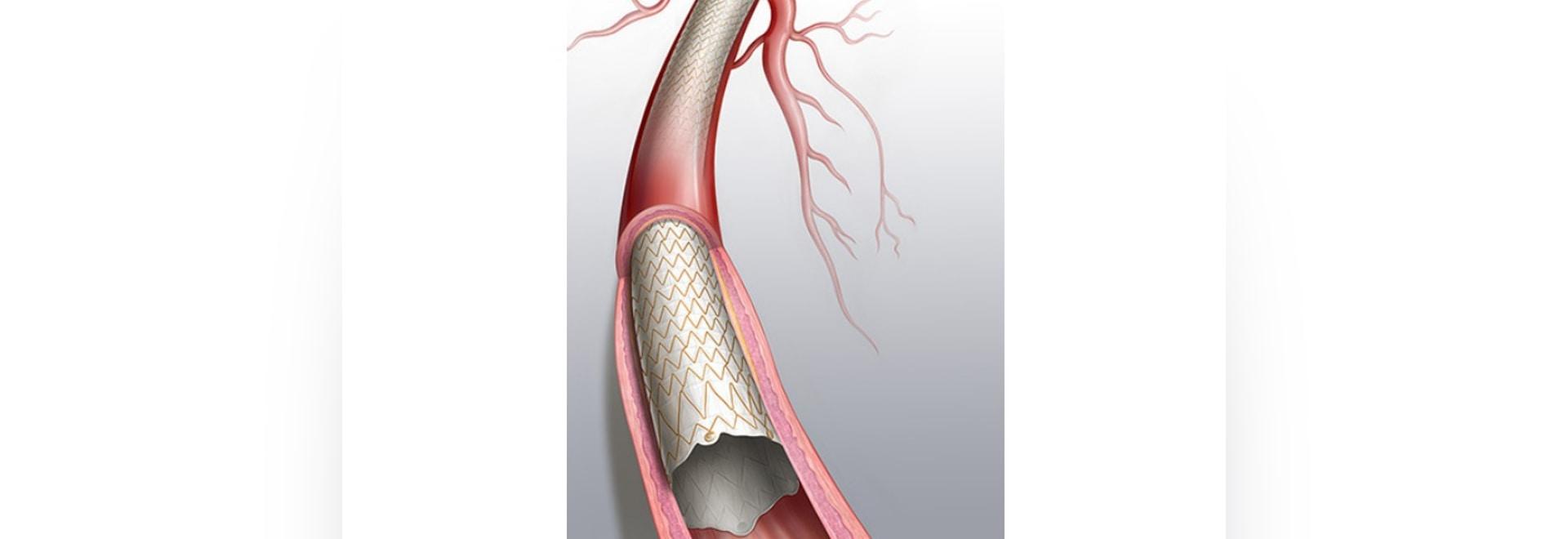 Aprobación previa a la comercialización por parte de la FDA de la endoprótesis cubierta Covera para pacientes con enfermedad renal en fase terminal en hemodiálisis