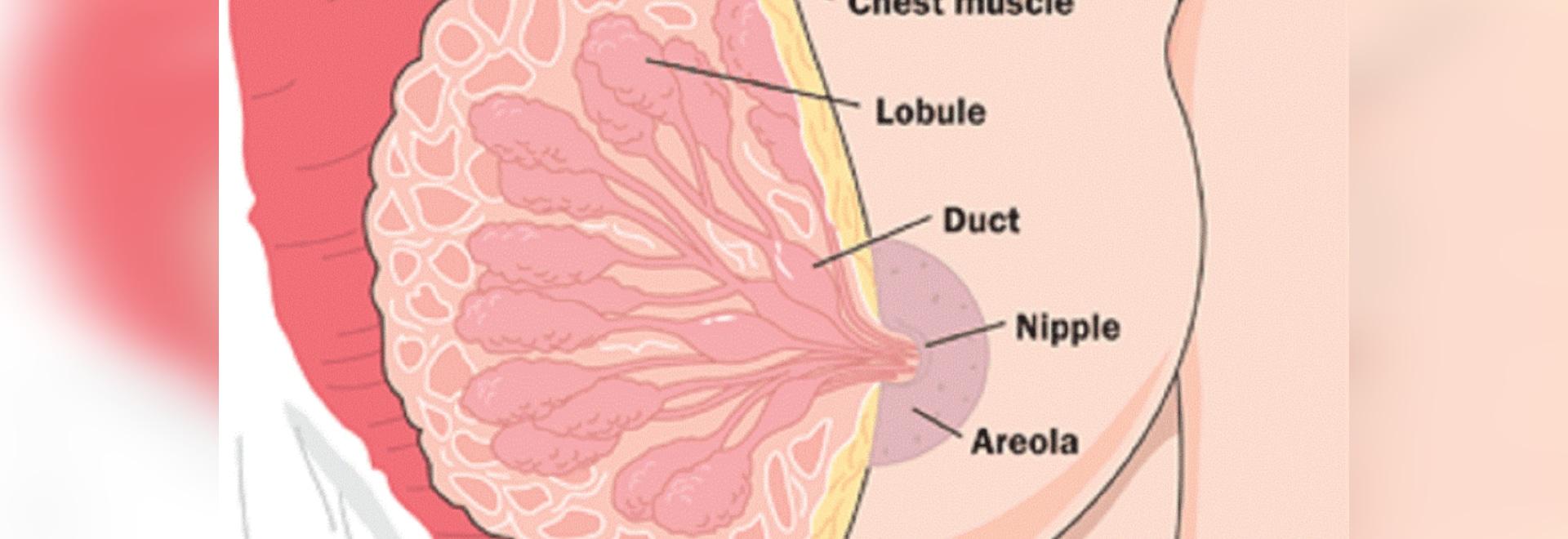Cáncer de pecho: Muestras de la anatomía y de la detección temprana ...