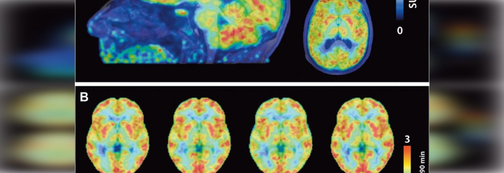 Las exploraciones del ANIMAL DOMÉSTICO revelan los cerebros de las mujeres aparecen 3 años más joven que los hombres