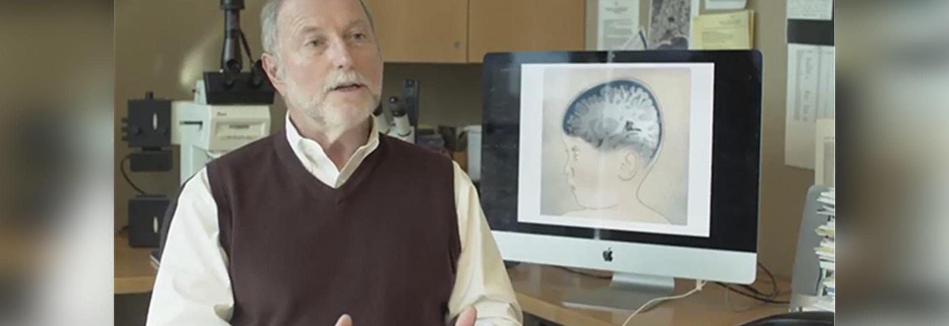 El líquido cerebroespinal muestra promesa como Biomarker del autismo
