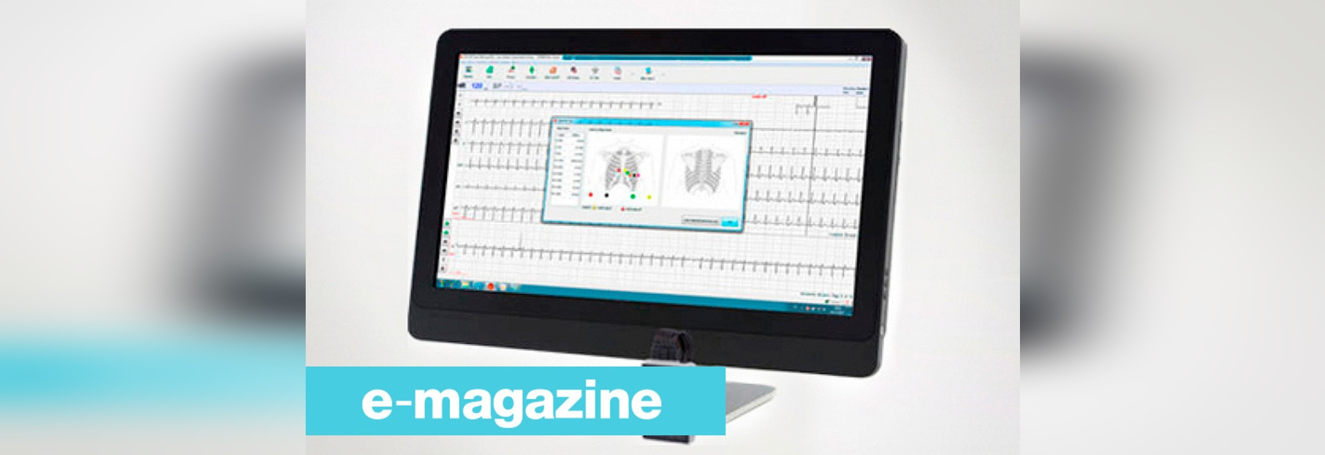 Un nuevo sistema de ECG para detectar anormalidades cardiacas