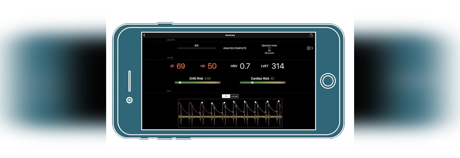 Smartphone usando su cámara puede evaluar salud del corazón