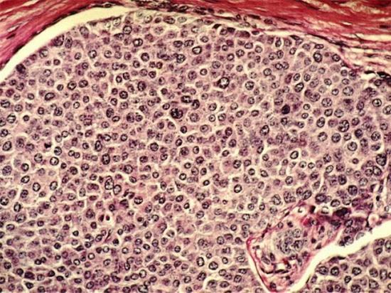Cómo el cáncer puede separarse incluso antes de que un tumor se convierte