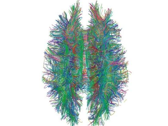 Las exploraciones de MRI pueden ayudar a manchar el VIH en cerebro