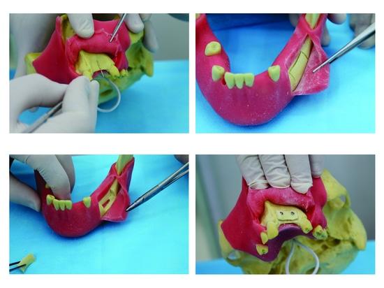 Modelo pre molar con la goma