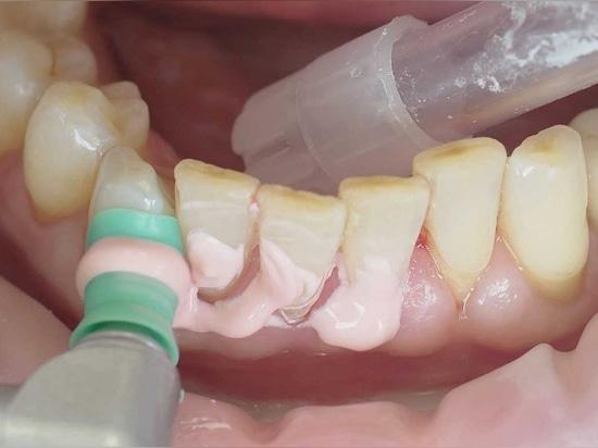 Los implantes deben ser insertados solamente cuando las condiciones periodontales son estables
