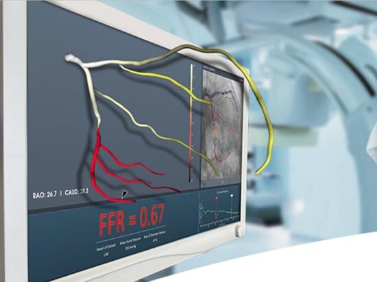 FFRangio utiliza radiografías para medir la reserva fraccionaria del flujo, ahora despejada en los E.E.U.U.