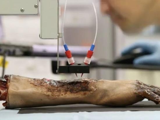 Impresión de las células epiteliales en heridas de la quemadura