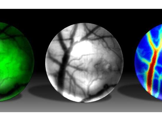 Mini Microscopio es el nuevo GoPro para estudios de enfermedades cerebrales en ratones