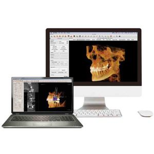 software para imagen dental