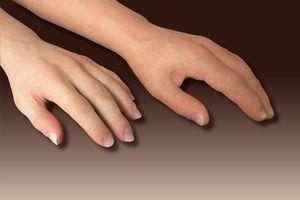 prótesis estética esterna antebrazo