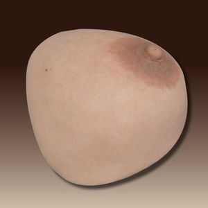 prótesis estética esterna mamaria