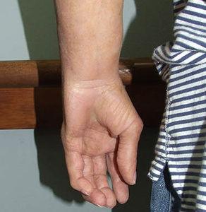 prótesis estética esterna mano