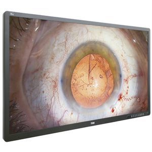 monitor quirúrgico