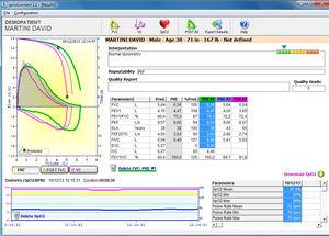software para oxímetro de pulso