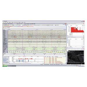 software para polisomnografía