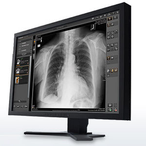 software para imágenes médicas / de análisis / de gestión / de visualización