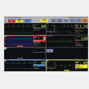 central de monitorización del paciente
