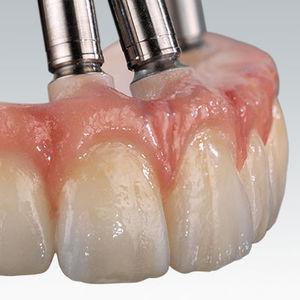 material dental de circona / para la restauración dental / CAD CAM / para puente dental
