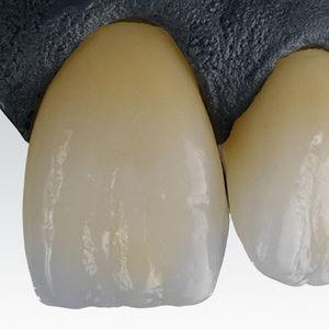 material dental de circona / CAD CAM / supertranslúcido / blanco