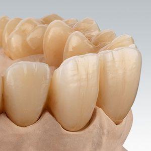 material dental de dióxido de circonio / para la restauración dental / CAD CAM / altamente translúcido