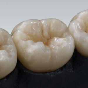 material dental de circona / CAD CAM / para corona / para carillas dentales