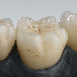 material dental de cerámica / para corona / altamente translúcido