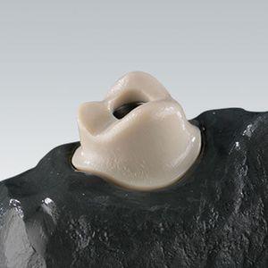 material dental de polímero acrílico