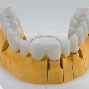 material dental cera