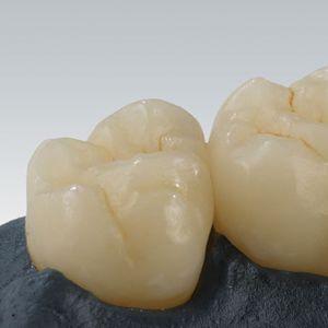 material dental de cerámica híbrida