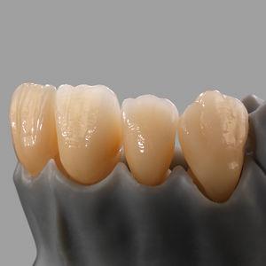 material dental de dióxido de circonio