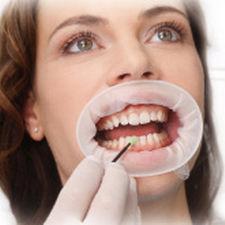retractor mejillas / labial / para odontología