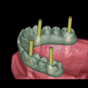 software de implantología dental