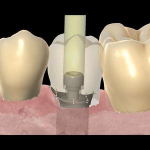 software de laboratorio dental