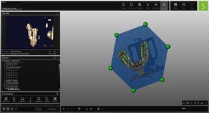 módulo de software de laboratorio dental