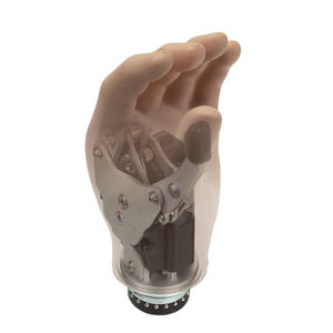 prótesis de mano mioeléctrica
