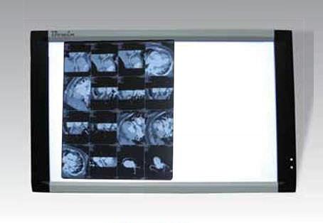 negatoscopio 2 pantallas